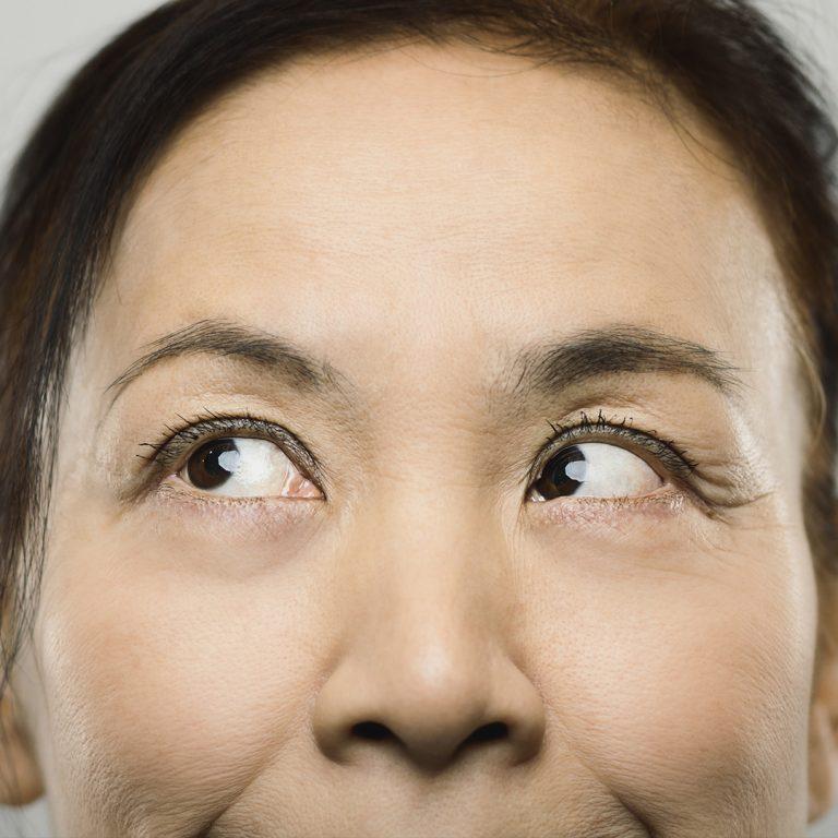 Optometry in Australia