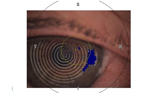 Optometry skills aid recovery from corneal injury during gardening
