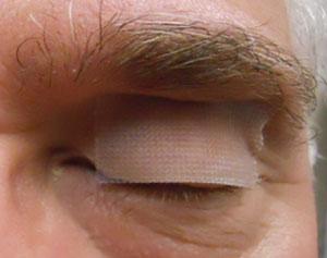 Pharma -ONLINE-Lens -bandage -Figure -2
