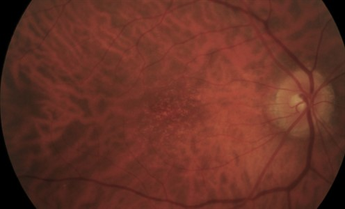 Early AMD Fundus