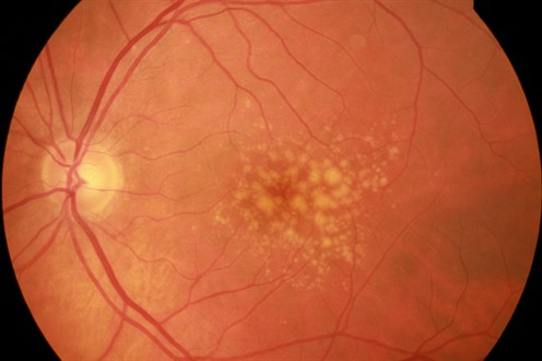 Intermediate Fundus