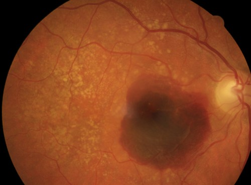 Late AMD Fundus