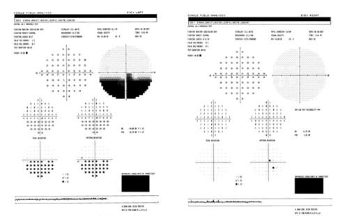 Pharma-ONLINE-sleep-apnoea-Figure-2