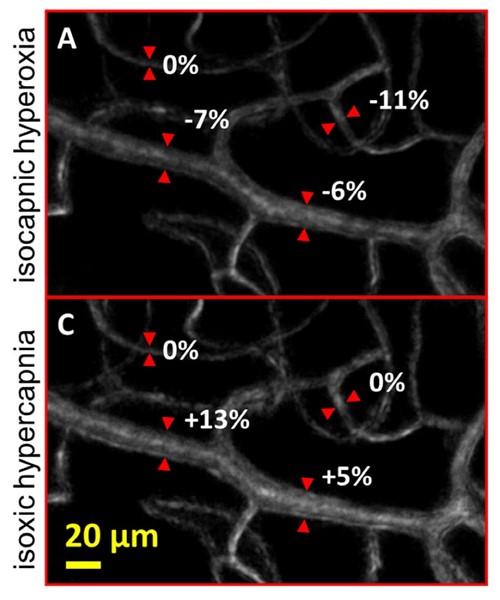 Retinal arteriole - online