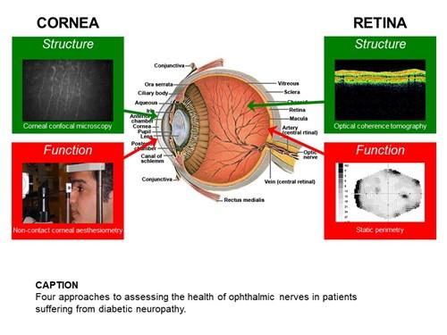 Slide 1 - cornea and retina