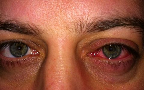 Anterior eye guide helps optometrists diagnose and treat red eye